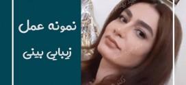 عوارض جراحی بینی در دراز مدت را جدی بگیرید!!!@