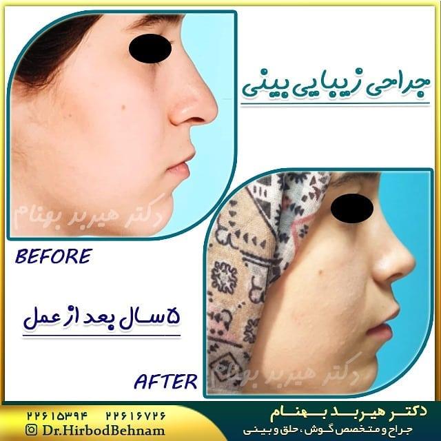 نمونه جراحی بینی دکتر هیربد بهنام