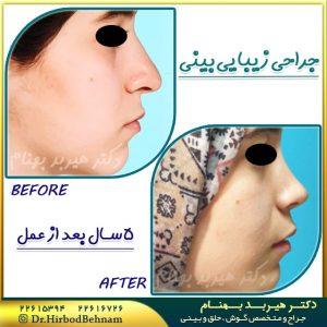 نمونه جراحی بینی طبیعی دکتر هیربد بهنام
