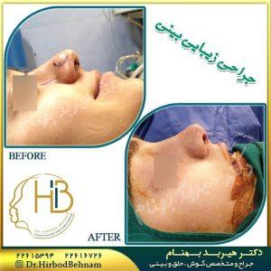 نمونه جراحی بینی گوشتی دکتر هیربد بهنام