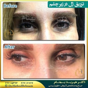 نمونه تزریق ژل به زیر چشم دکتر هیربد بهنام