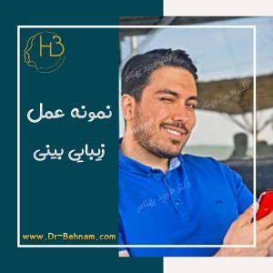 جراحی بینی مردانه دکتر هیربد بهنام